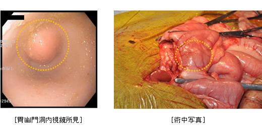 内視鏡検査・手術